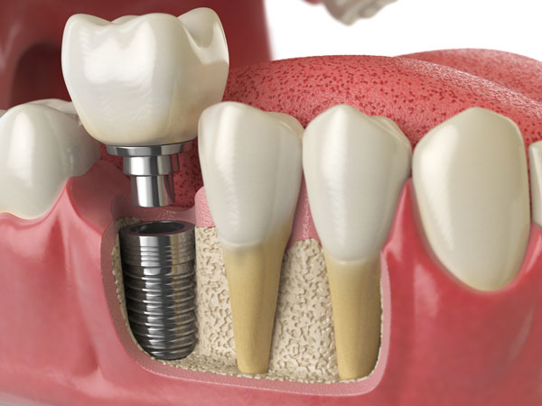 Implants and Crowns